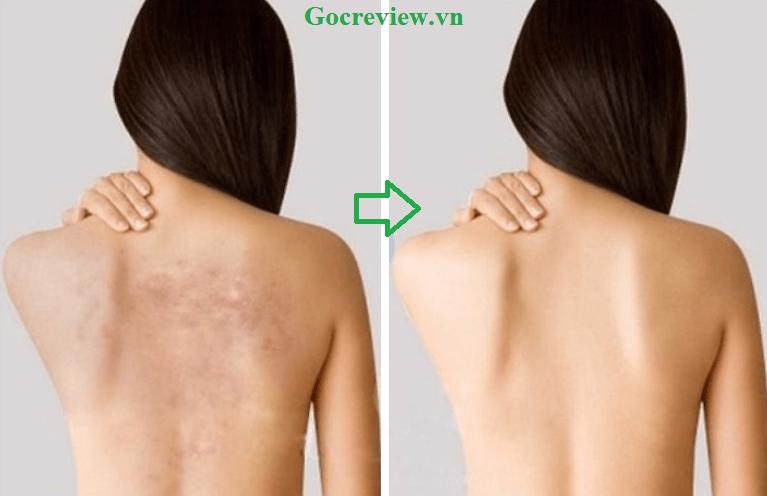sua-tam-neutrogena-review